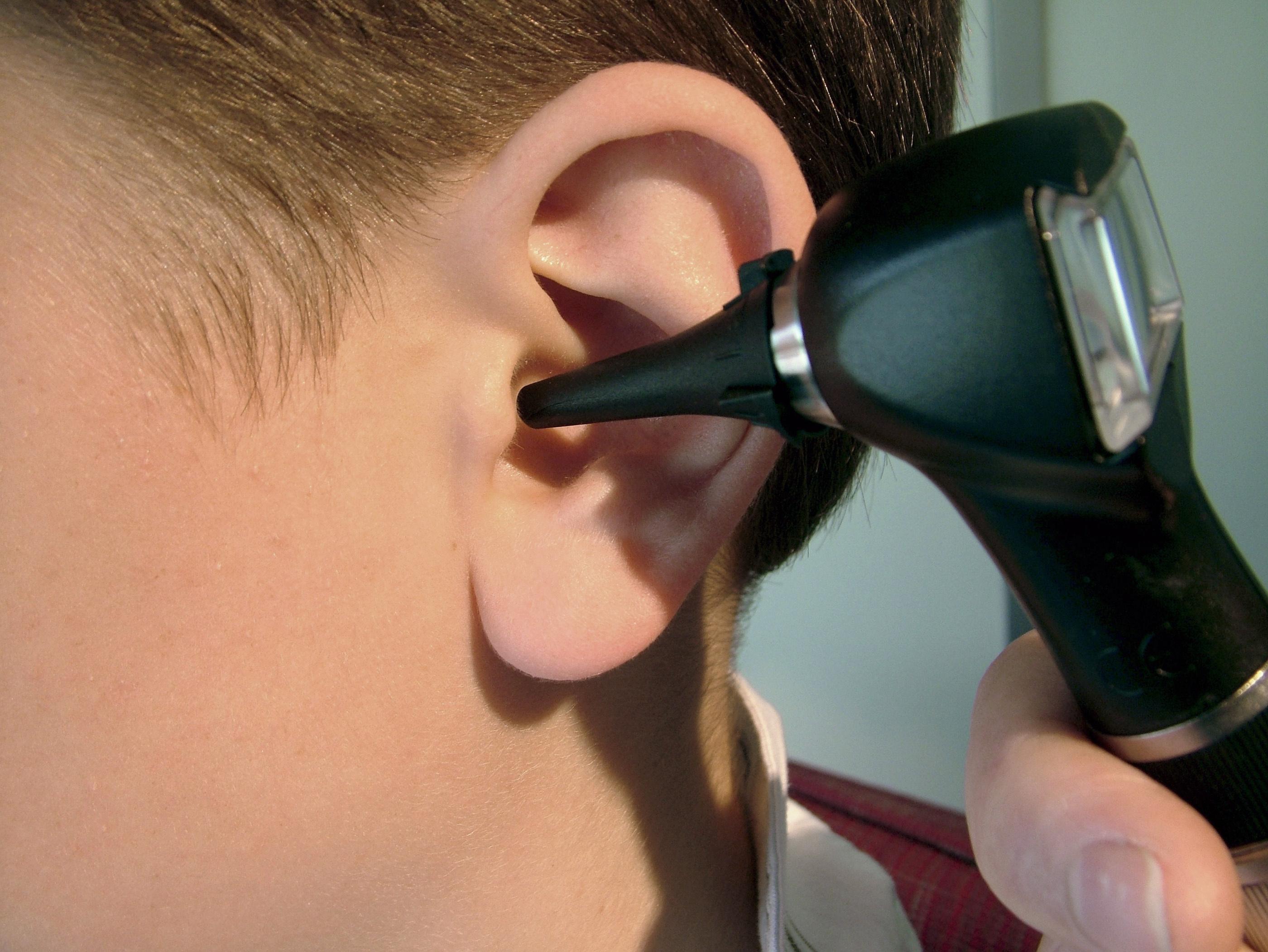 если уши выше бровей Самые извращенные тенденции красоты: Топ-24