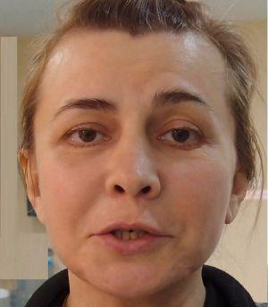 Агибалова-старшая изуродовала лицо неудачной пластикой
