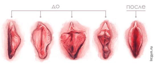 массаж интимных половых