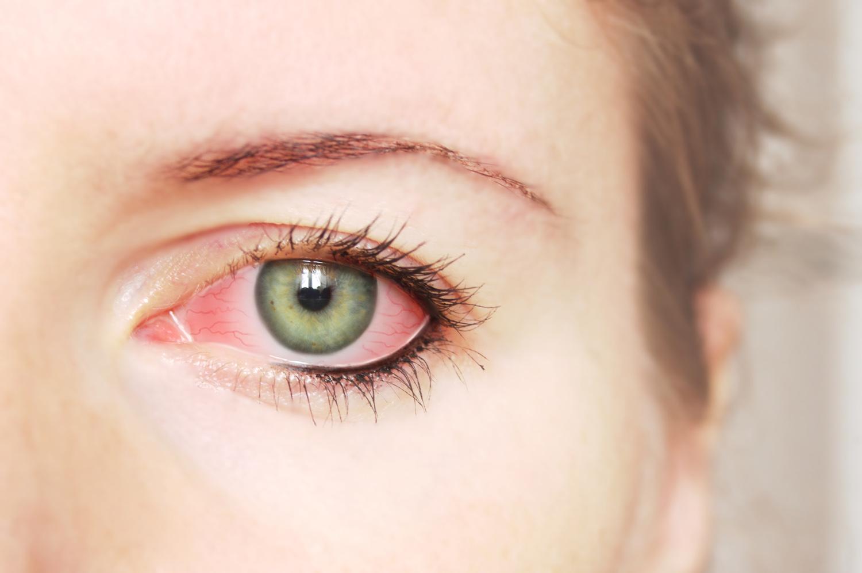 Как сделать белки глаза красными