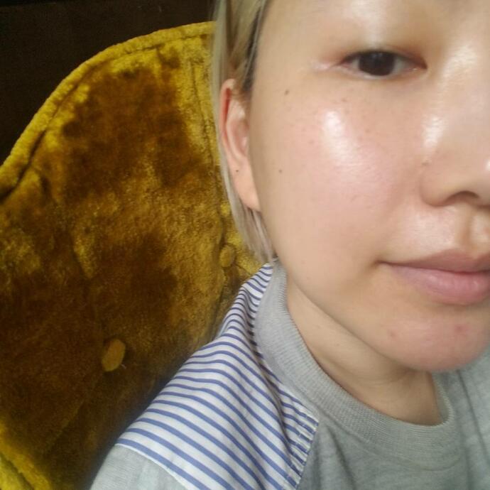 стеклянная кожа